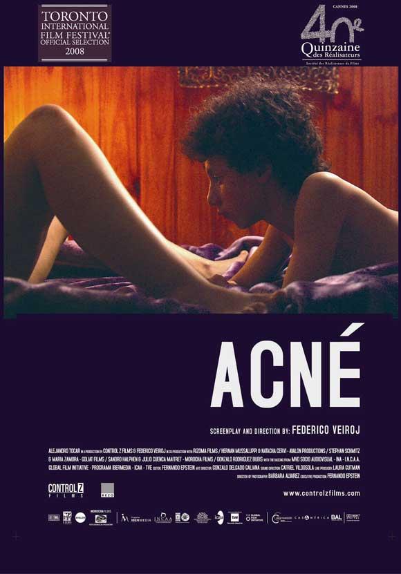 Acné movie