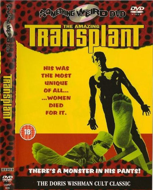 Amazing Transplant movie