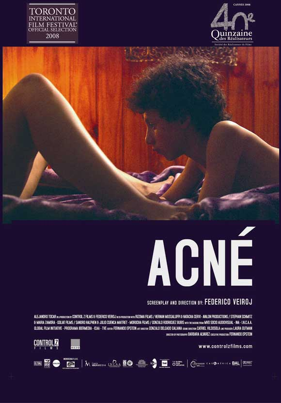 Acné movie